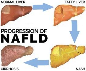 Fatty Liver, NAFLD and NASH - LiverSupport.com