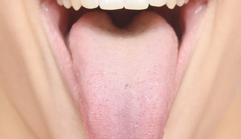 Teeth Marks On The Side Of The Tongue And Liver