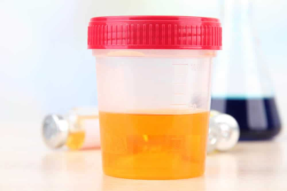 Dark Orange Amber Or Brown Urine Could Indicate A Liver