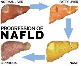progression of nafld