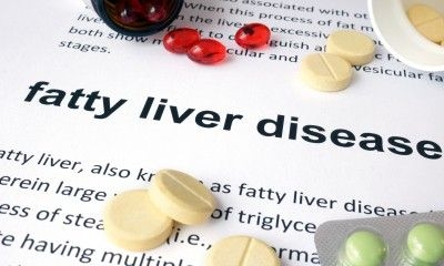fatty liver disease aramchol