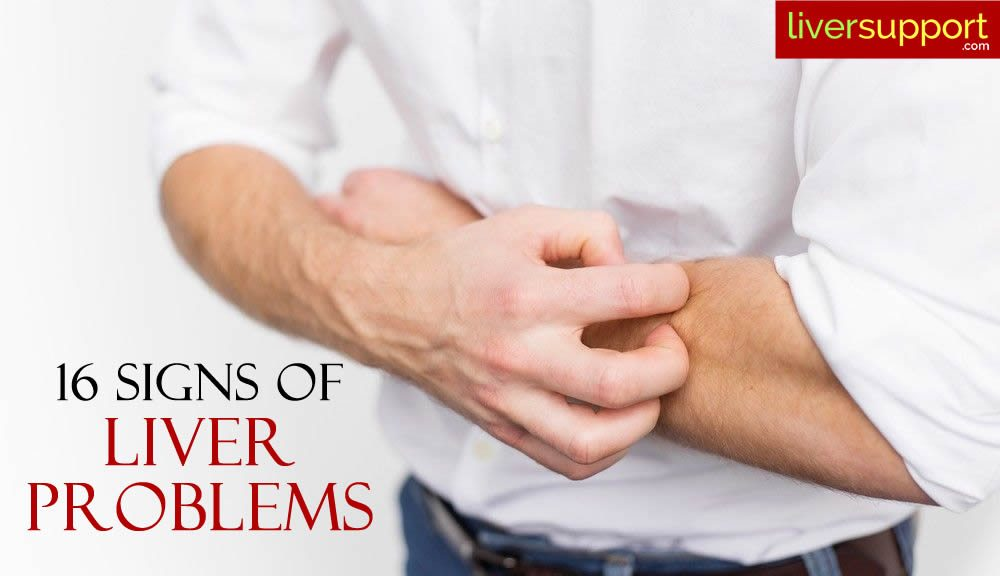 16 signs of liver problems
