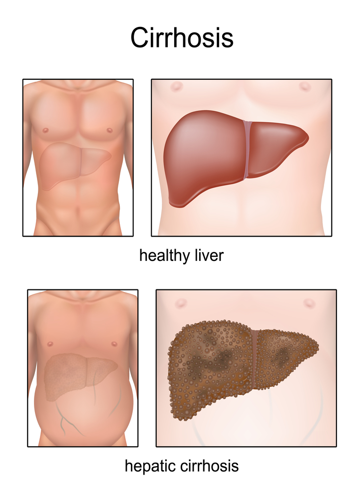Know about the signs of liver damage before you develop cirrhosis of the liver.