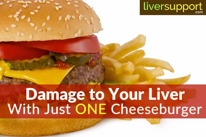 Damage to Your Liver With Just ONE Cheeseburger