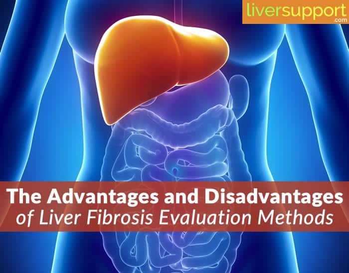 The Advantages and Disadvantages of Liver Fibrosis Evaluation Methods
