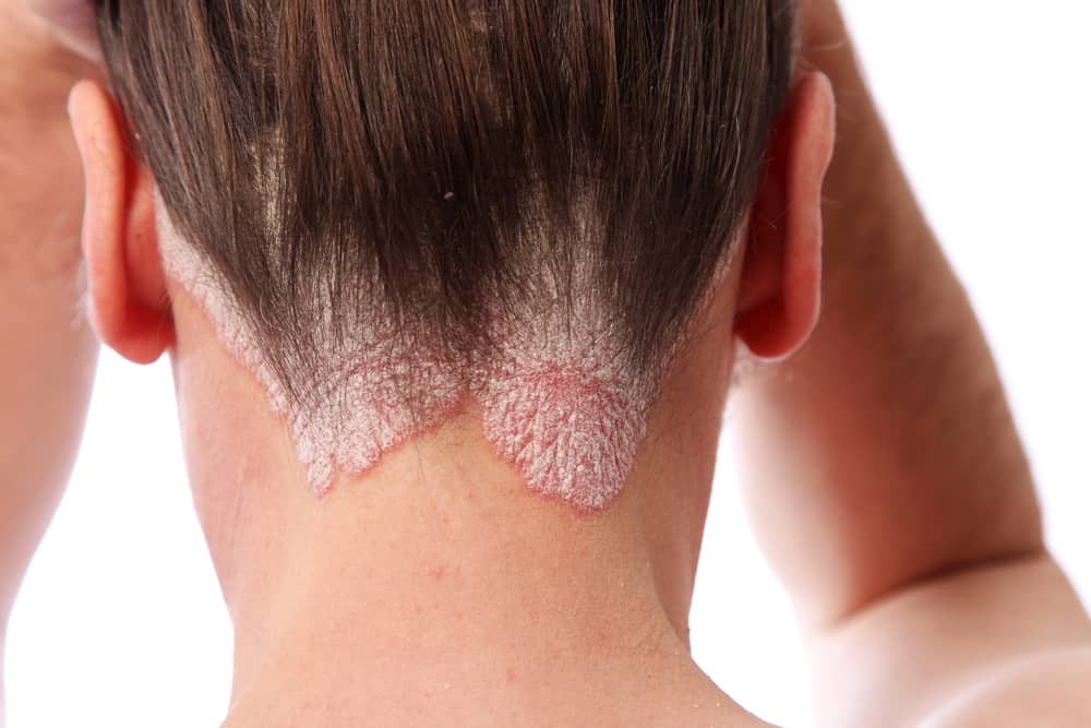 Psoriasis can occur anywhere on your body.