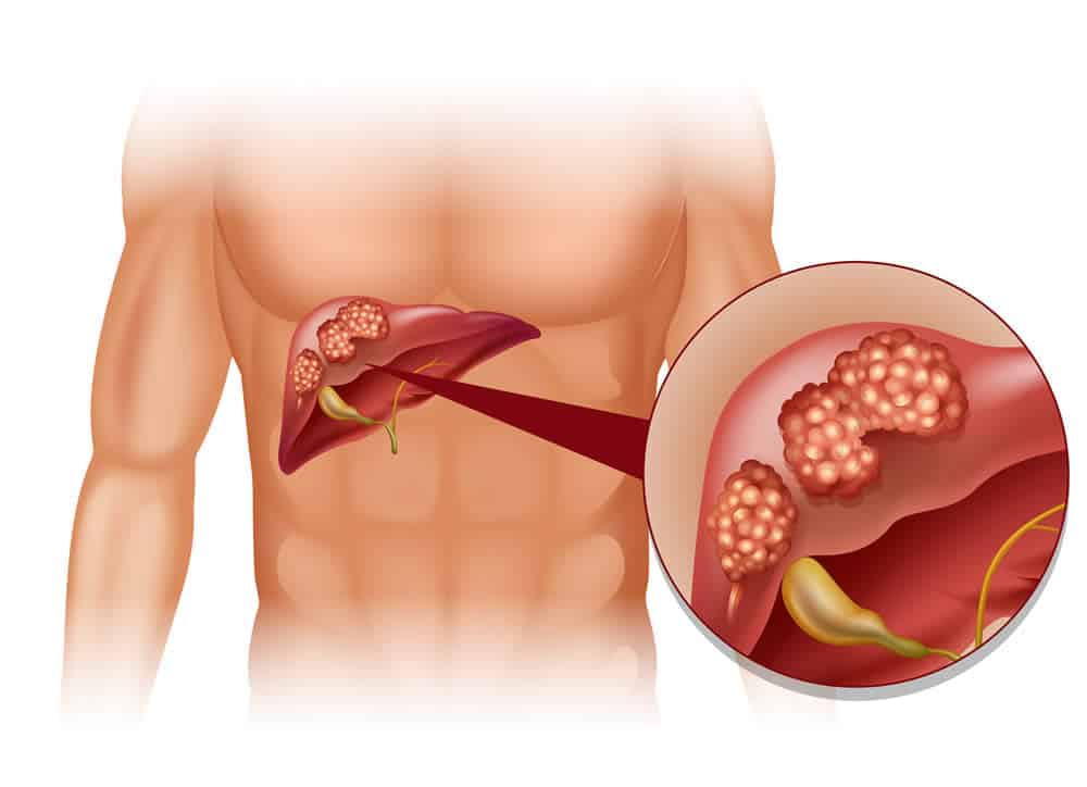 Can liver cysts develop into liver cancer?