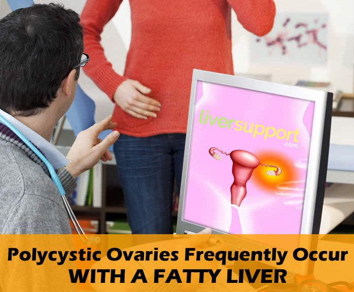 Polycystic Ovaries Frequently Occur with a Fatty Liver