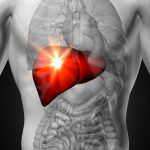 Liver pain caused by acute liver failure