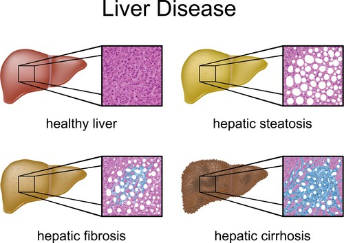 The stages of fatty liver disease.