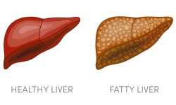 Game Changer in the Search for Fatty Liver Medication