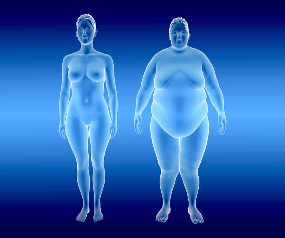 Weight and Obesity May No Longer Be Leading Indicators of Fatty Liver Disease