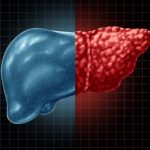Yale Researchers Have Found a Drug to Reverse Fatty Liver