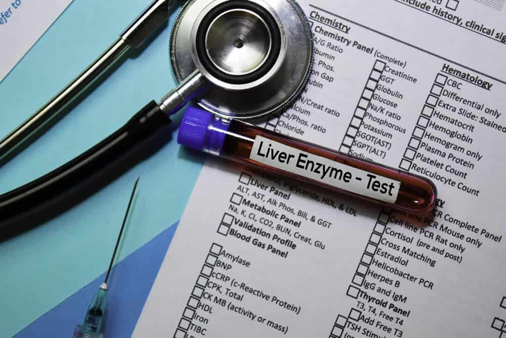 Liver enzyme tests can help detect liver fibrosis.